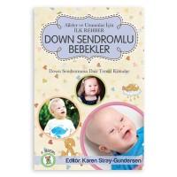 Down Sendromlu Bebekler